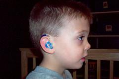 Appareils auditifs enfants