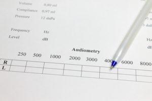 Audiogramme Test Auditif Explications Et Quand Y Avoir Recours