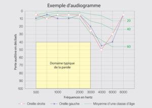 hyperacousie : situer le niveau de la parole sur un exemple d'audiogramme