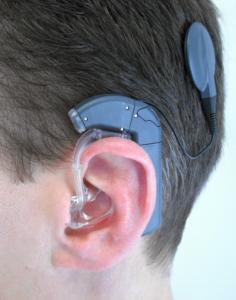 implant cochléaire