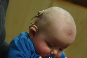 Implant cochléaire bébé