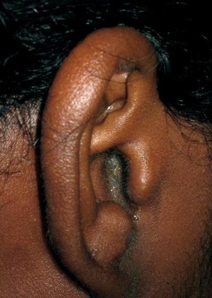 otite chez l adulte oreille bouch e
