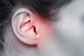 Le neurinome de l'acoustique : tumeur bénigne du conduit auditif