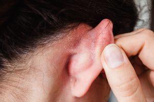 eczéma oreille