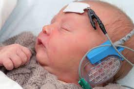 potentiels évoqués bébé